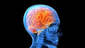 Novel PET agent could advance neurological imaging