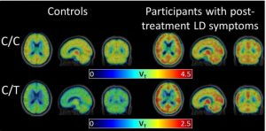 Carbon-11 PET detects brain inflammation after Lyme disease
