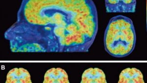 PET scans reveal women's brains appear 3 years younger than men's
