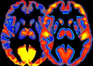 PET, fMRI shed light on alcohol's effects on brain
